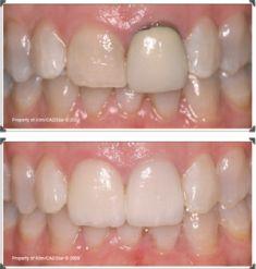 VitaDent zubná klinika - Fotka pred - VitaDent zubná klinika